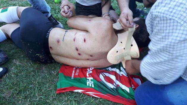 Футболистов расстреляли вовремя матча вАргентине