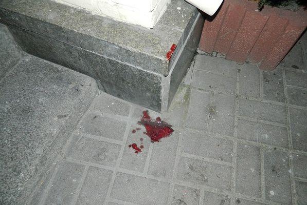 Вцентре столицы Украины двое молодых людей избили иограбили прохожего