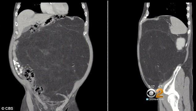 Житель америки  думал, что унего «пивной живот», аоказалось— 14-килограммовая опухоль