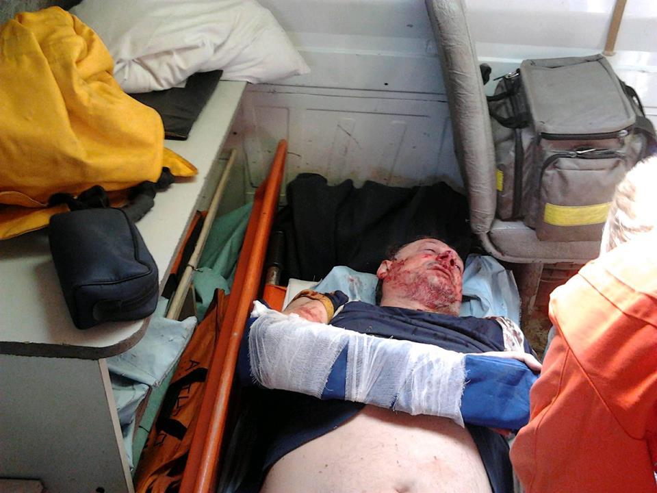 Вгосударстве Украина избит соратник Саакашвили