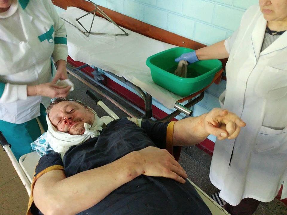 ВУкраинском государстве избили единомышленника Саакашвили