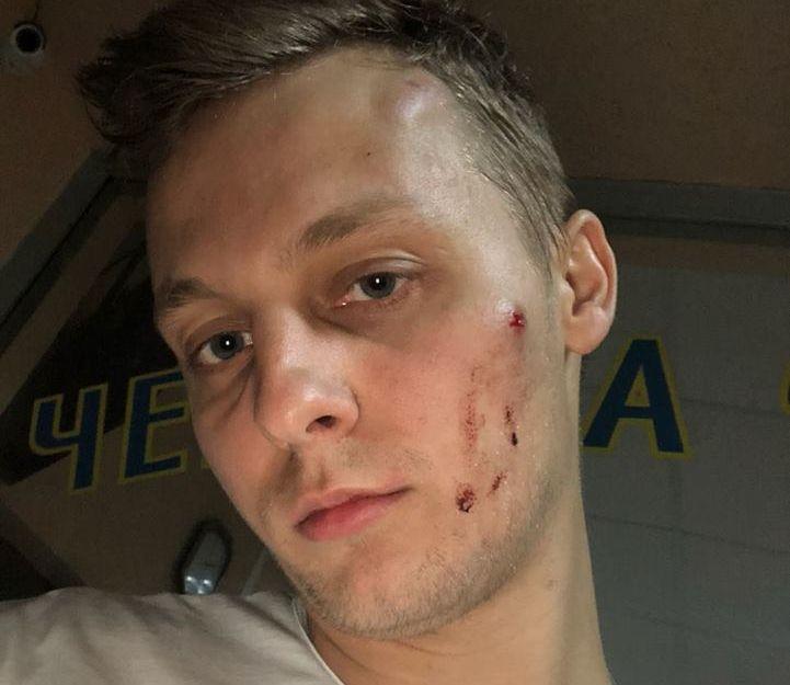 ВКиеве безжалостно избили сына Шуфрича