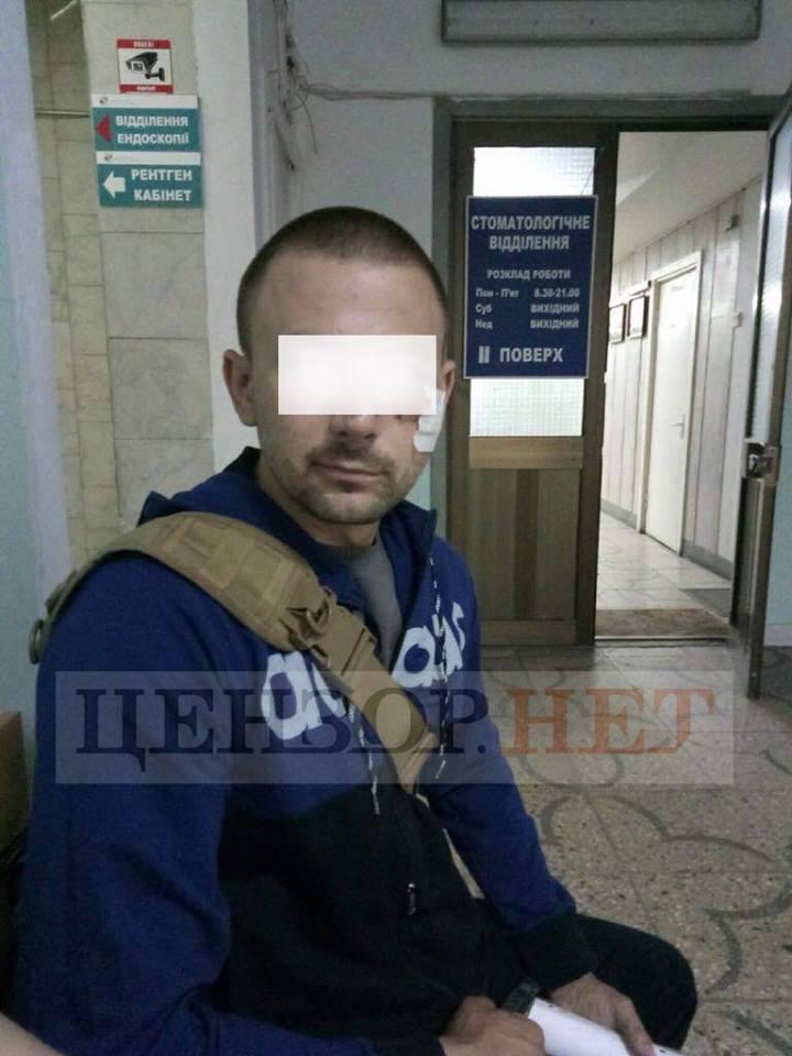 Боевик в упор выстрелил в бойца ВСУ, но тот выжил и добил его
