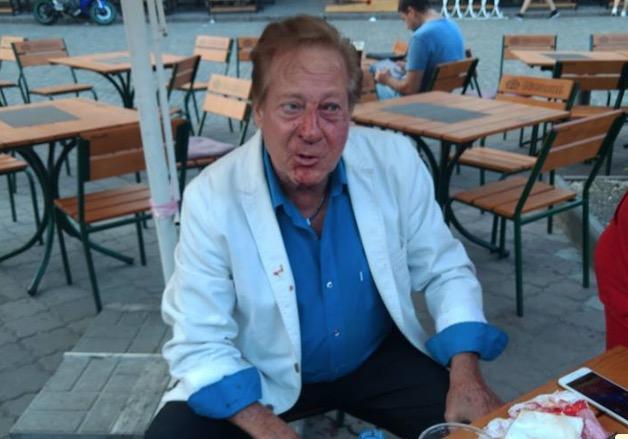 ВОдессе неизвестный избил американского певца Билла Уоррена