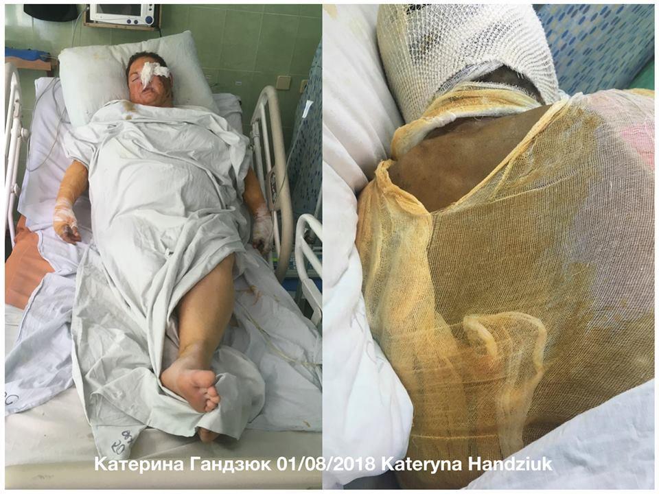 Появились первые фото Екатерины Гандзюк после нападения