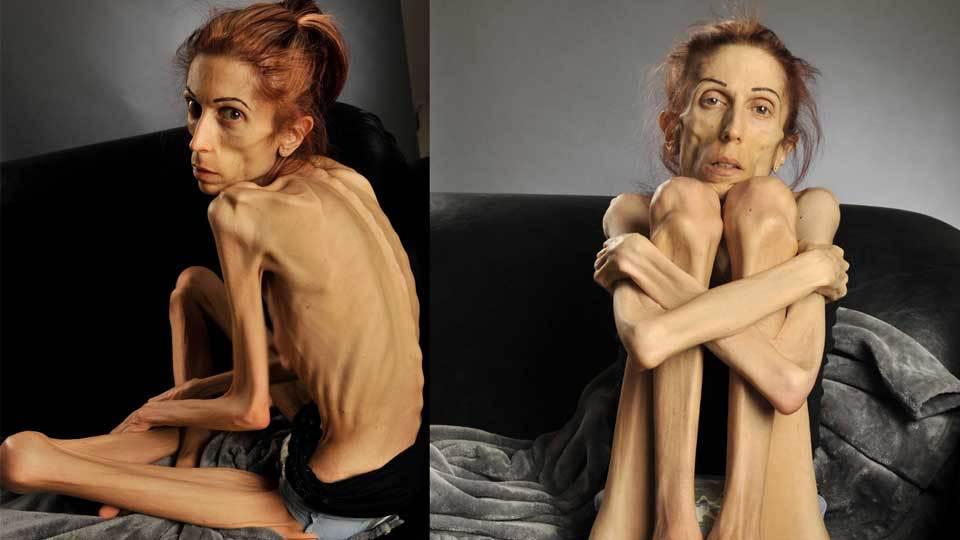 Как самому лечить анорексию